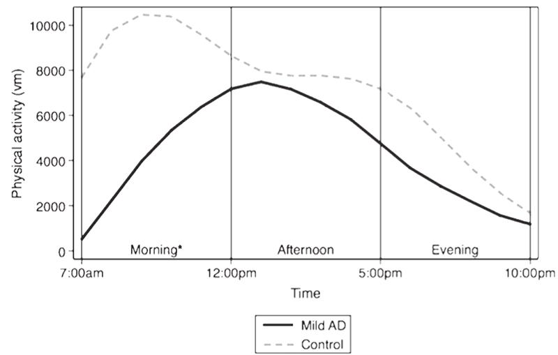Assignment about alzheimer disease